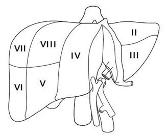 Segmental anatomy of the liver; the liver is being divided along the plane to be split and transplanted into small pediatric recipient and a larger (pediatric or adult) recipient (Scenarios 1 and 2 in the text).